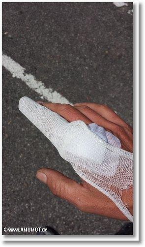 genähter finger